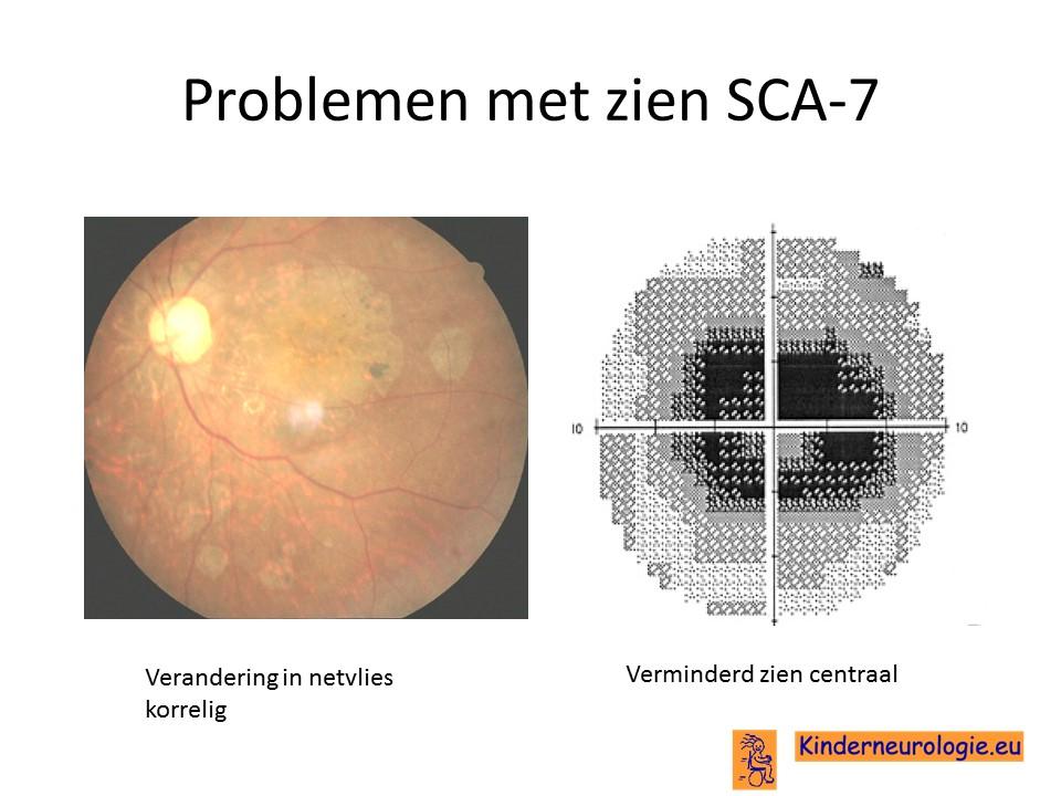 kunnen kegeltjes in je ogen herstellen