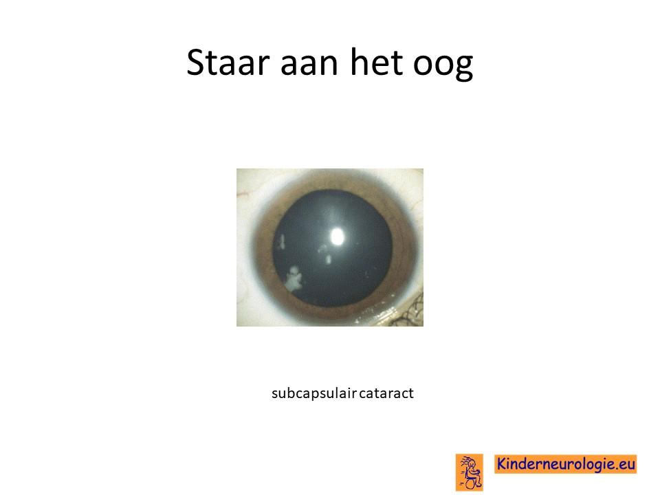 scheel oog opereren ervaringen
