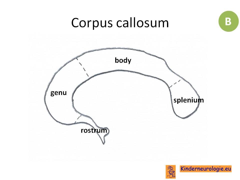 Niedlich Anatomie Corpus Callosum Zeitgenössisch - Anatomie Von ...