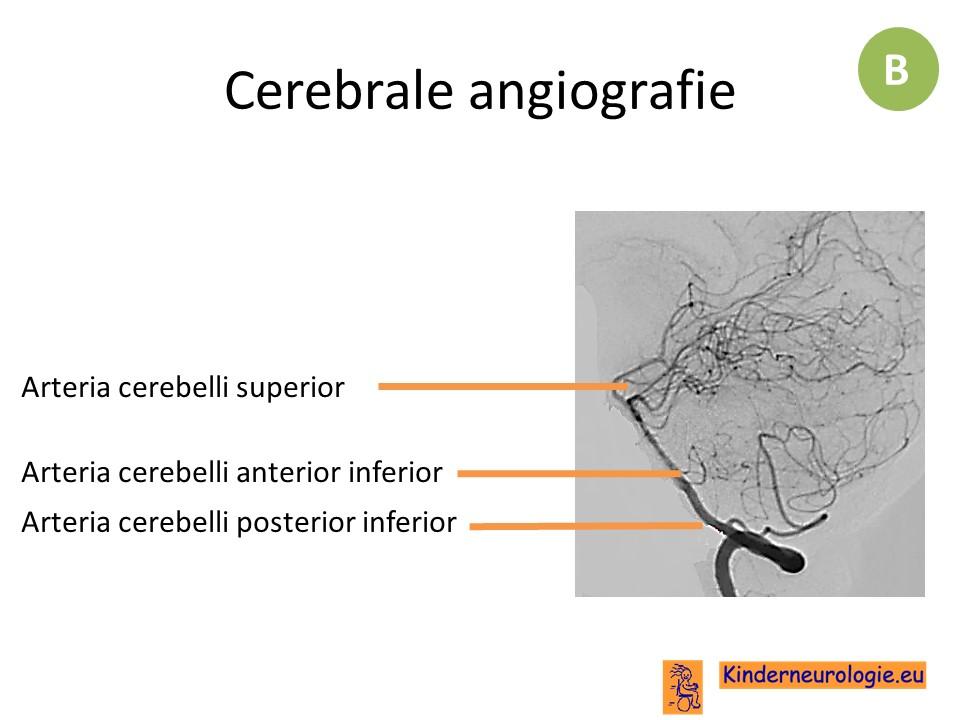 Atemberaubend Posterioren Cerebralen Zirkulation Anatomie Fotos ...