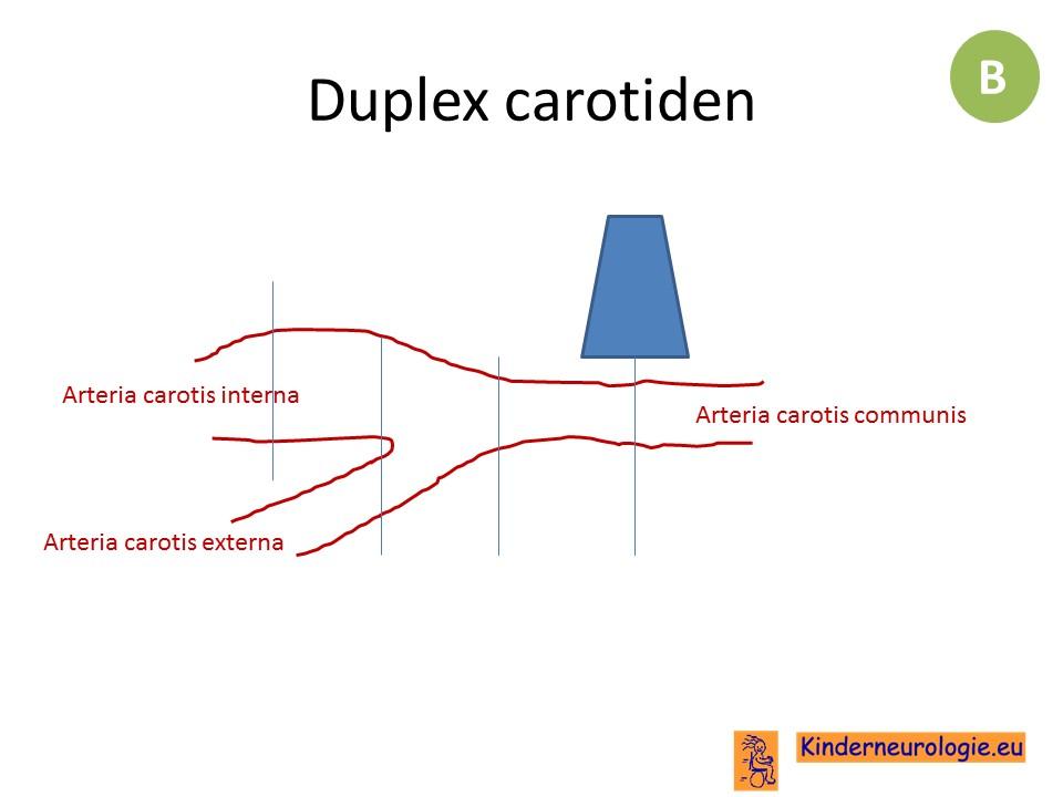 Großartig Linke Arteria Carotis Interna Fotos - Anatomie Von ...