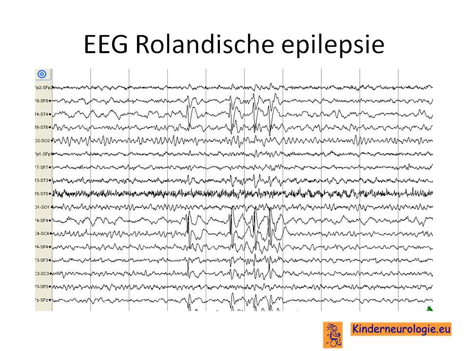 absence epilepsie volwassenen