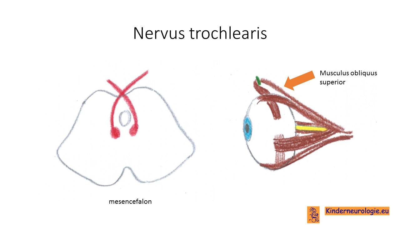 M trochlearis