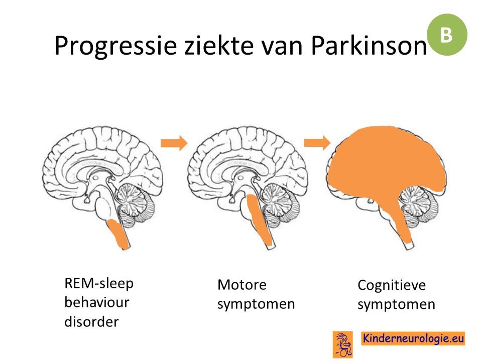 http://www.kinderneurologie.eu/images/neurodegeneratief/progressie%20ziekte%20van%20parkinson.jpg