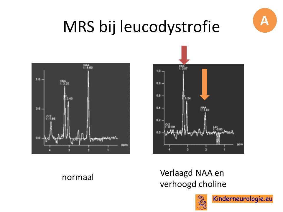 http://www.kinderneurologie.eu/images/witte%20stofziekte/MRS%20witte%20stofziekten.jpg